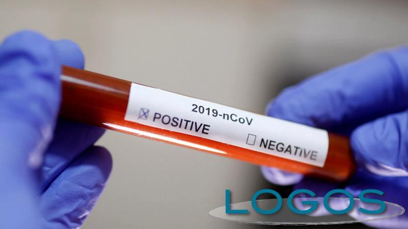 Salute - Tampone che risulta positivo al COVID-19 (foto internet)