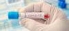 Salute - Test sierologici (Foto internet)